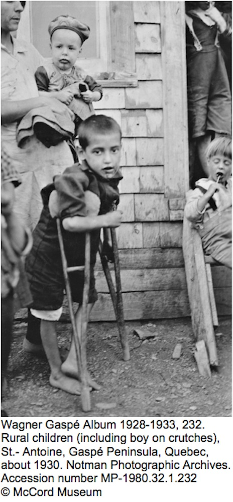 Wagner Gaspé Album 1928-1933, 232.  Rural children (including boy on crutches), St.- Antoine, Gaspé Peninsula, Quebec, about 1930. Notman Photographic Archives. Accession number MP-1980.32.1.232 © McCord Museum